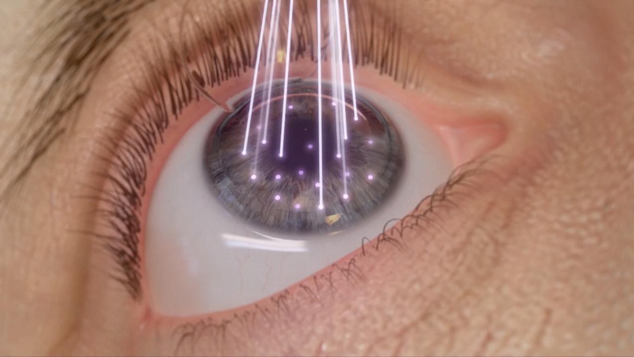 Read more about the article PRK Transepitelial, Cirurgia Refrativa sem corte