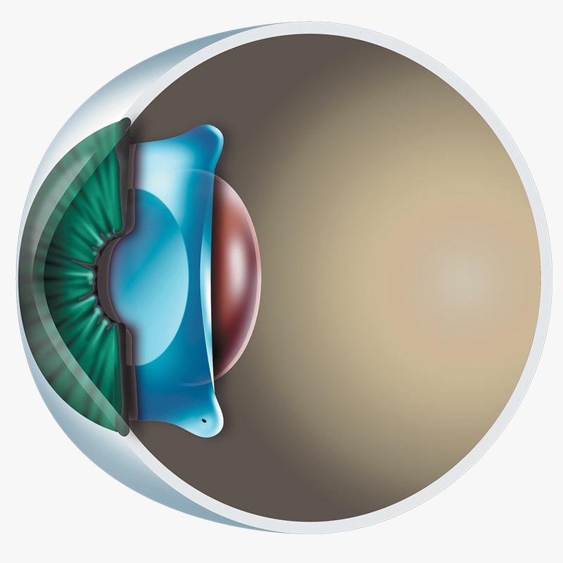 Implante de lente fácica